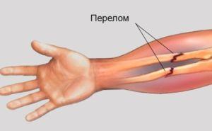 Перелом двойной руки