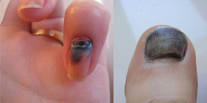 Ушиб ногтя и пальца