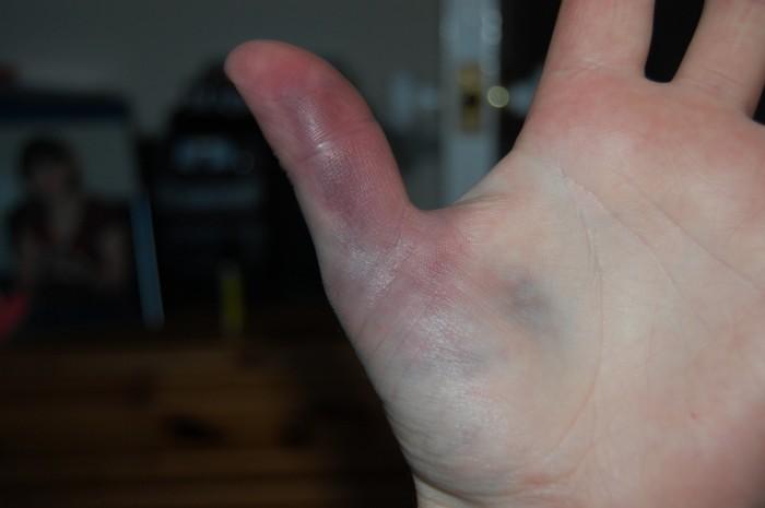 Синяк на большом пальце руки