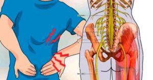 Симптомы защемления нерва