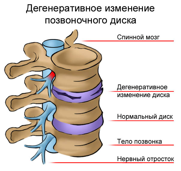 Дегенеративные процессы в позвоночнике