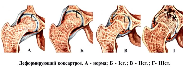 Стадии развития коксартроза