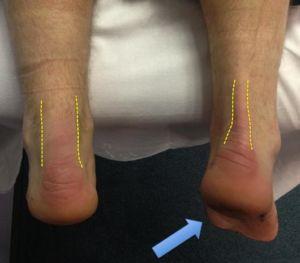 Симптомы травмы ахиллова сухожилия