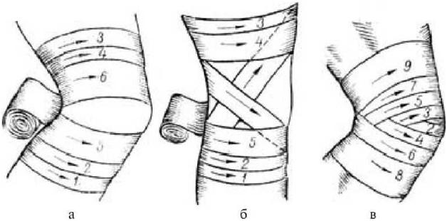 Наложение повязки на коленный сустав