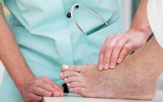 Причины и способы лечения наростов на пятке и шишек на ноге