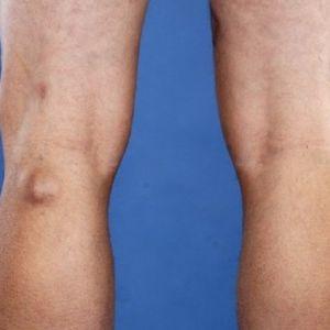 Киста Бейкера коленного сустава: лечение, причины и симптомы