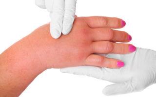 Почему опухают пальцы рук: причины, диагностика и лечение отеков