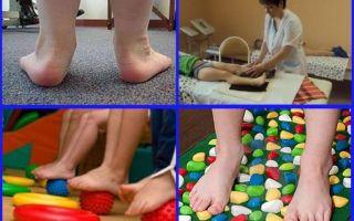 Признаки, лечение и фото вальгусной стопы у ребенка