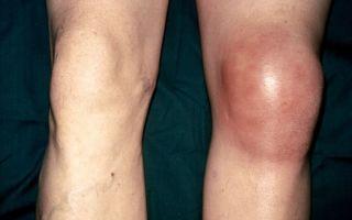 Лечение воспаления коленного сустава: препараты, народные средства и упражнения