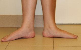 Плоскостопие у взрослых: лечение и диагностика в домашних условиях