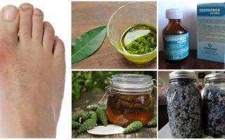Народная медицина против «болезни королей»: как лечить подагру в домашних условиях?