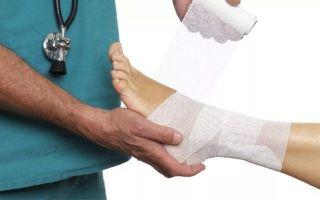 Травмы связок на ногах: как распознать разрыв передней крестообразной связки колена?