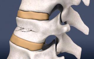Как распознать компрессионный перелом позвонка и другие виды переломов?