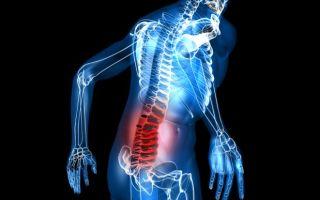 Как лечить остеохондроз поясничного отдела традиционными и народными средствами?