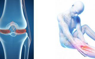 Современные и эффективные методы лечения повреждения мениска колена