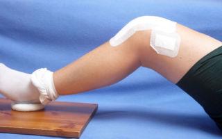 Эффективные методы лечения артроза в домашних условиях