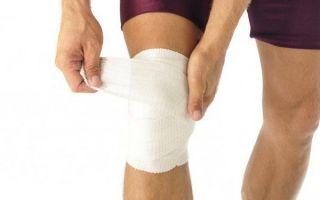 Фиксирующие повязки на коленный сустав: способы наложения и виды повязок