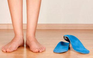 Как выбрать ортопедические стельки для поперечного плоскостопия?