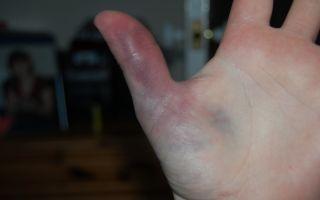 Если ушиб палец на руке: что делать и как лечить в домашних условиях?