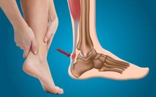 Болит ахиллово сухожилие: причины, диагностика и лечение