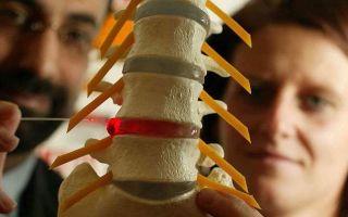 Протрузия дисков позвоночника: лечение и диагностика