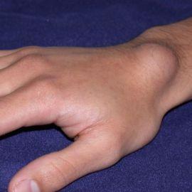 Как вылечить опухоль на пальцах рук препаратами и народными средствами?