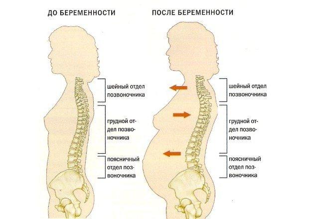 Позвоночник при беременности
