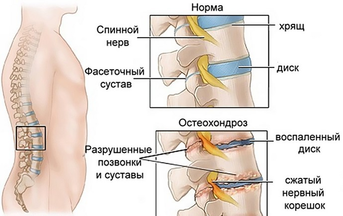 Диски при остеохондрозе