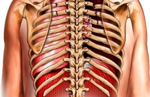 Перелом ребер виды симптомы первая помощь и лечение