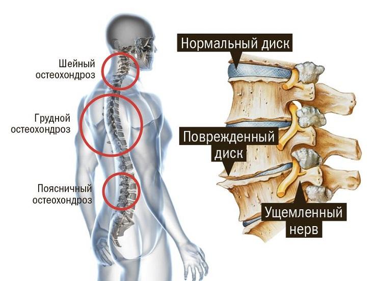 Виды остеохондроза у человека