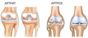 Артрозы и артритыстановятся причиной болей в ногах