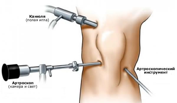 Операция на мениске коленного сустава эндоскоп
