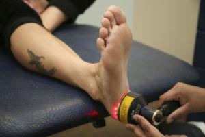 Лазерное лечение фасциита
