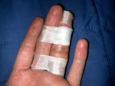 Наложение повязки на палец