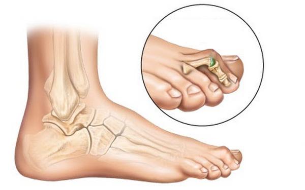 Операция косточки на ногах цена - отзывы при вальгус про цена