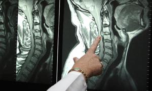 МРТ гирыжи шеи