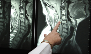 МРТ грыжи шеи