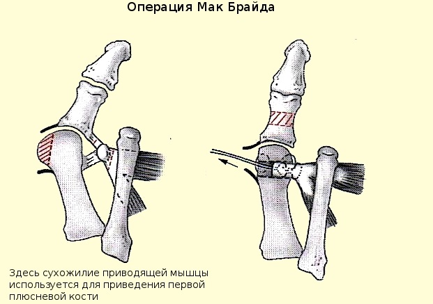 Операция по Мак Брайду