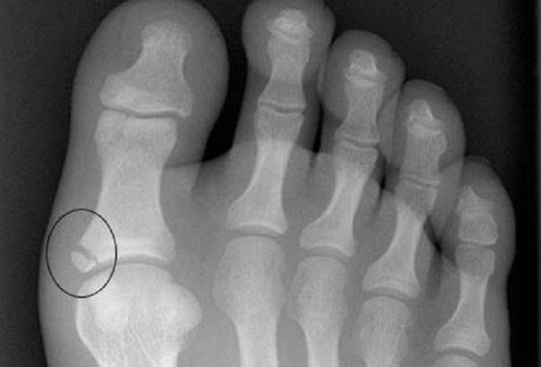 Оскольчатый перелом пальца ноги