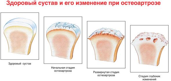 Три стадии остеоартроза