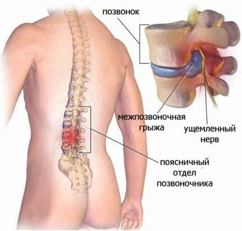 Развитие остеохондроза поясничного отдела