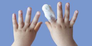 Перелом пальца у ребенка
