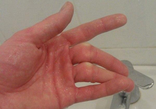 Перелом среднего и безымянного пальцев