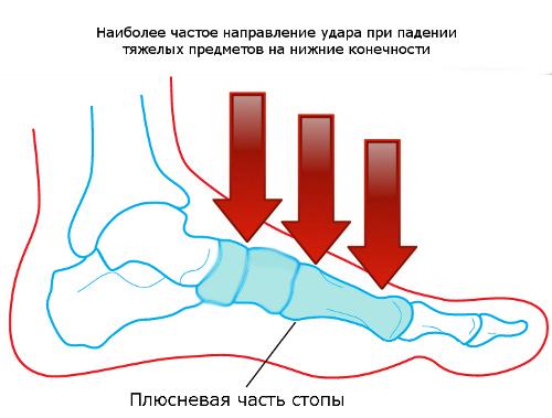 Плюсневые кости стопы человека