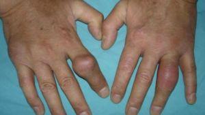 Проявления подагры на руках