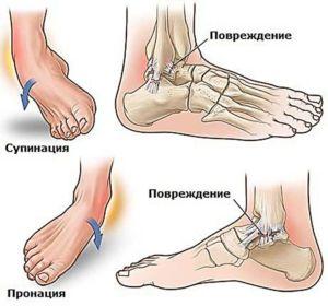 Травма голеностопного сустава стопы