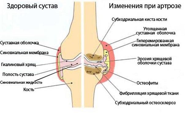 Воспаление коленного сустава какое лечение thumbnail