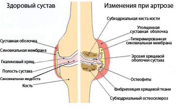 Развитие остеоартроза