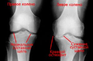 Рентген снимок сустава