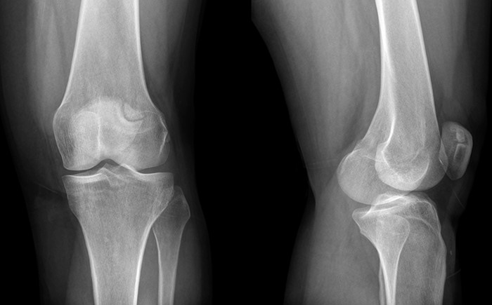 Рентген снимок суставов
